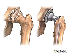 Illustration of a hip joint before and after hip replacement