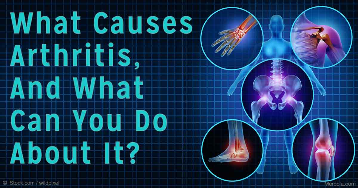 what causes arthritis and what is the cure